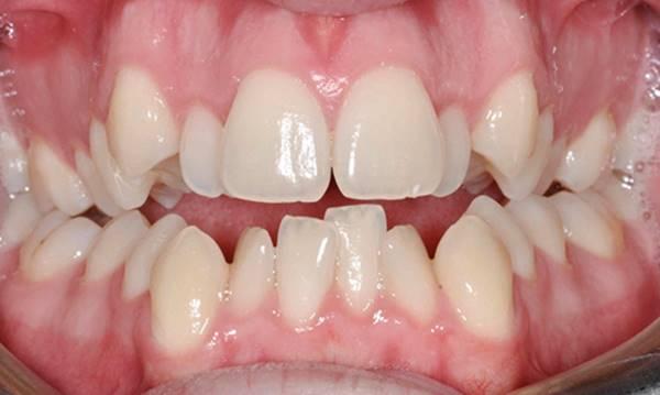 nhổ răng khểnh bao nhiêu tiền