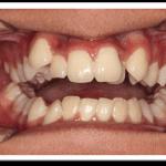 nhổ răng khểnh giá bao nhiêu