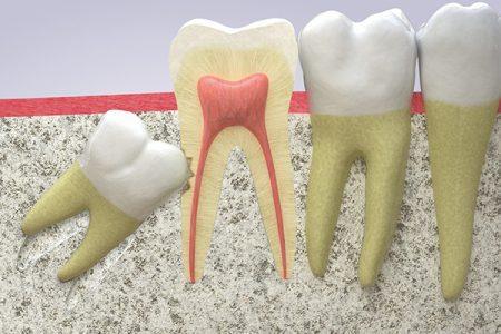 nhổ răng khôn hàm dưới bao nhiêu tiền