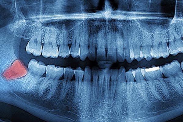 nhổ răng khôn hàm dưới