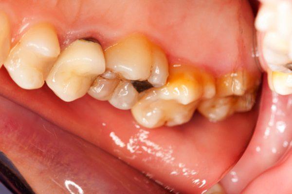 nhổ răng sâu giá bao nhiêu