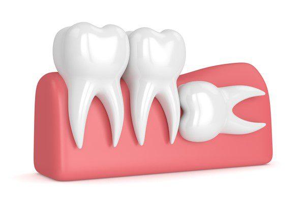 nhổ răng số 8 có nguy hiểm không