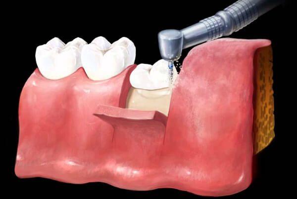 Nhổ răng số 8 mọc lệch ở đâu?