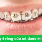 niềng răng toàn hàm
