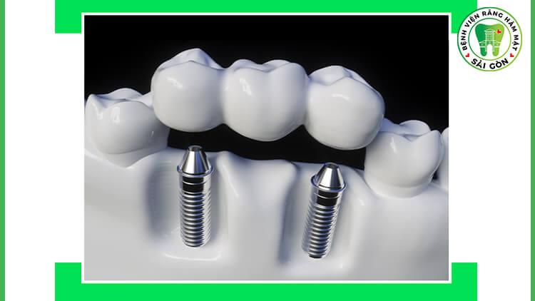 trồng răng giả là gì