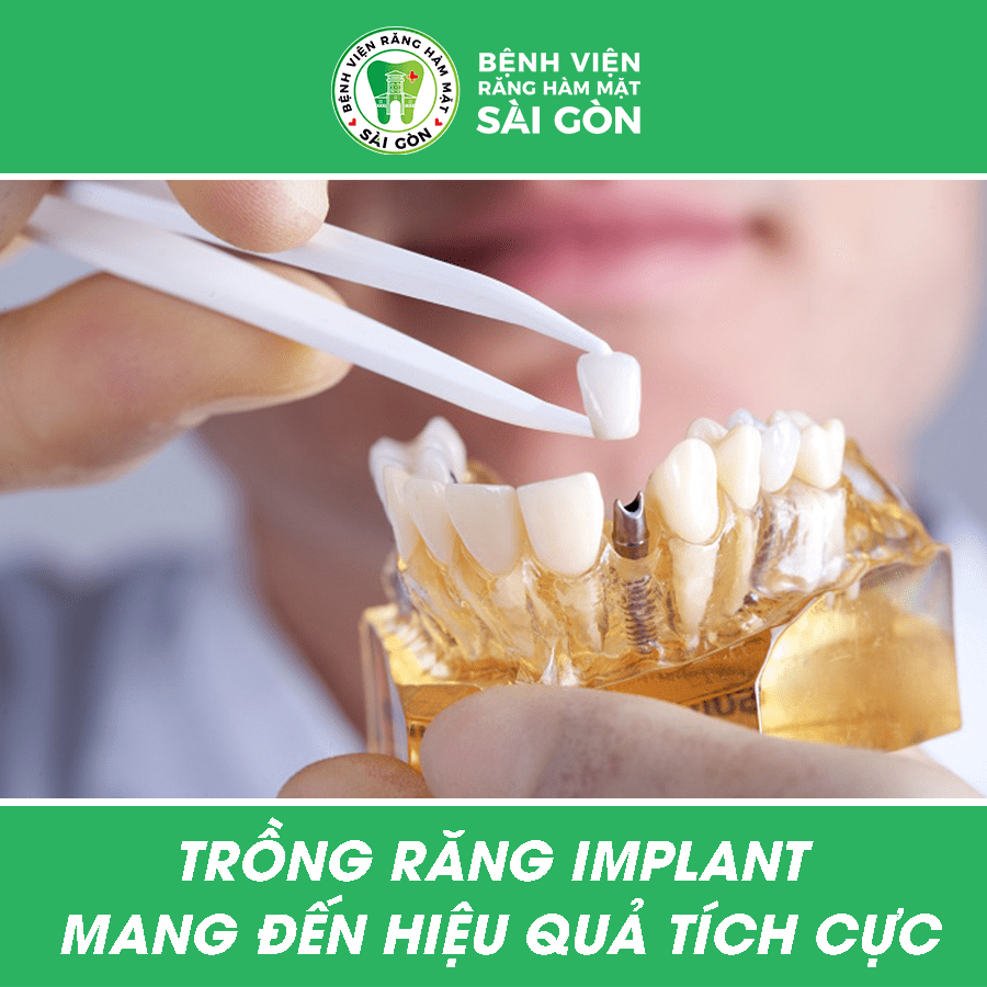 kỹ thuật cấy ghép implant tiêu chuẩn quốc tế