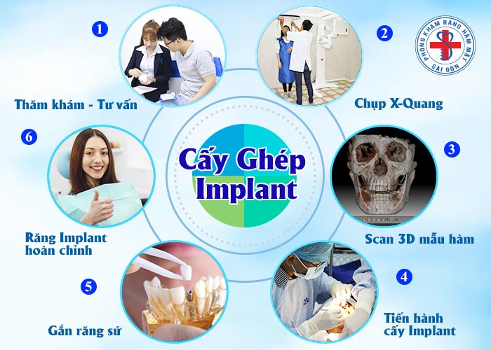 implant-quoc-te-13