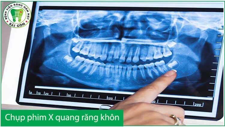 kiểm tra tình trạng răng khôn