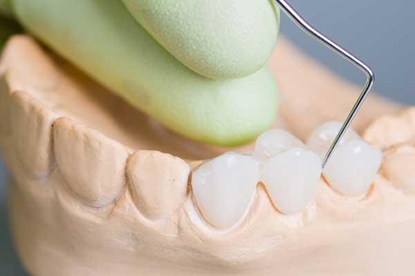 làm răng giả tốt nhất