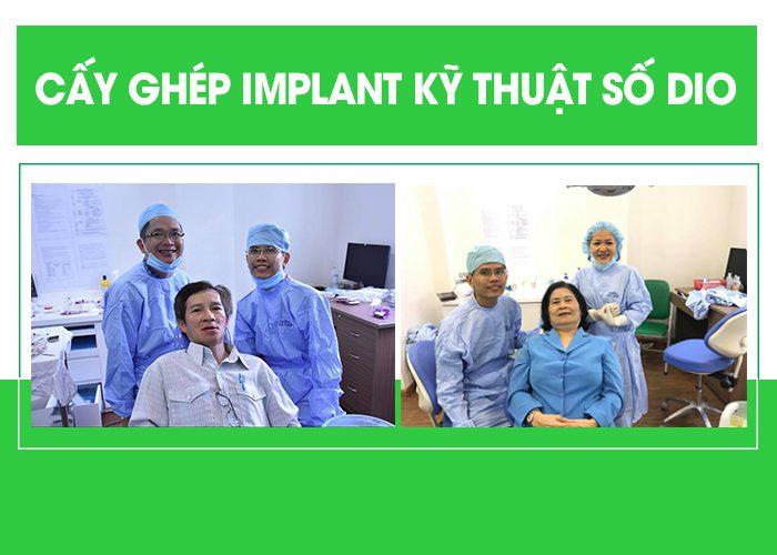 Làm răng giả Implant giá bao nhiêu