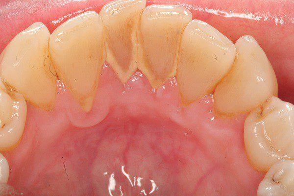 lấy cao răng ở sài gòn