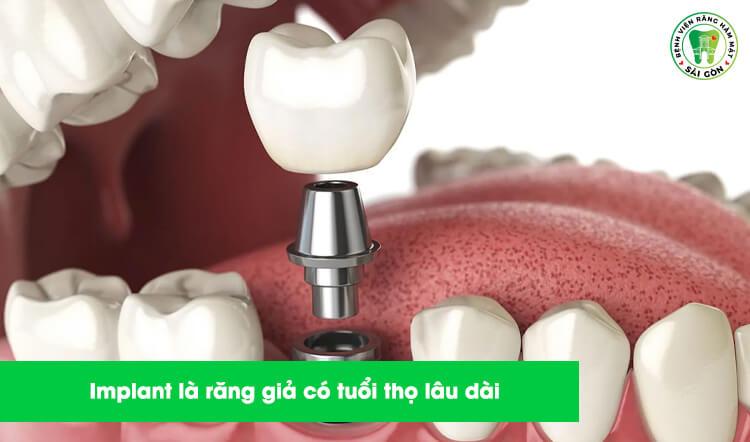 răng Implant bền chắc