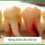 nhổ răng khôn số 8 ở đâu tốt