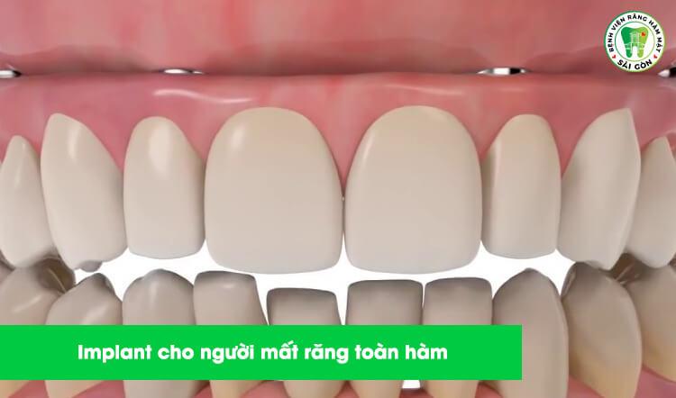 Implant nha khoa là gì