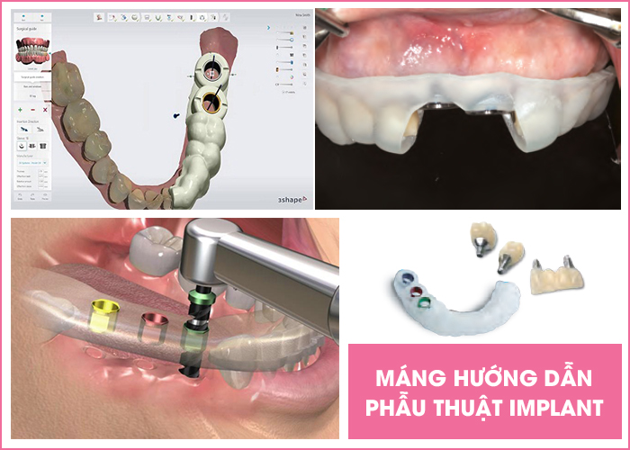 trồng răng giả