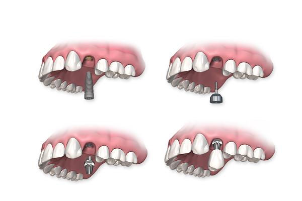 trồng răng giả mất bao lâu