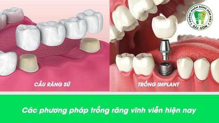 Các phương pháp trồng răng vĩnh viễn