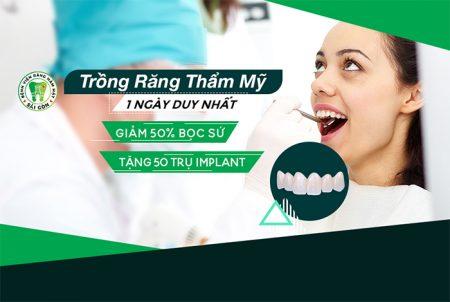 ngày hội trồng răng
