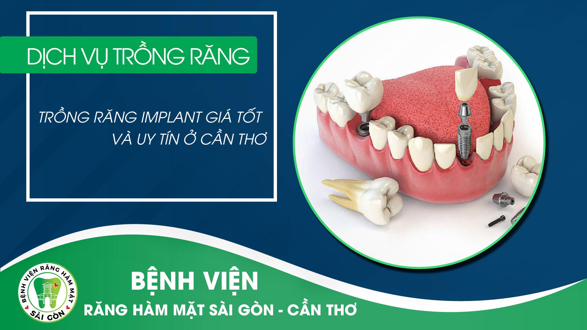 trong-rang-implant-gia-tot-va-uy-tin-o-can-tho