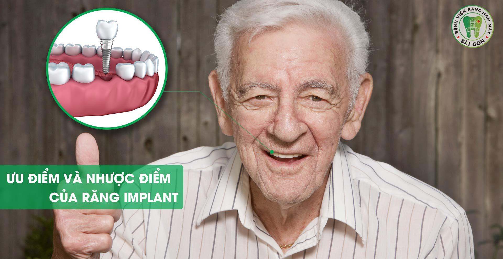 uu-diem-cua-rang-implant