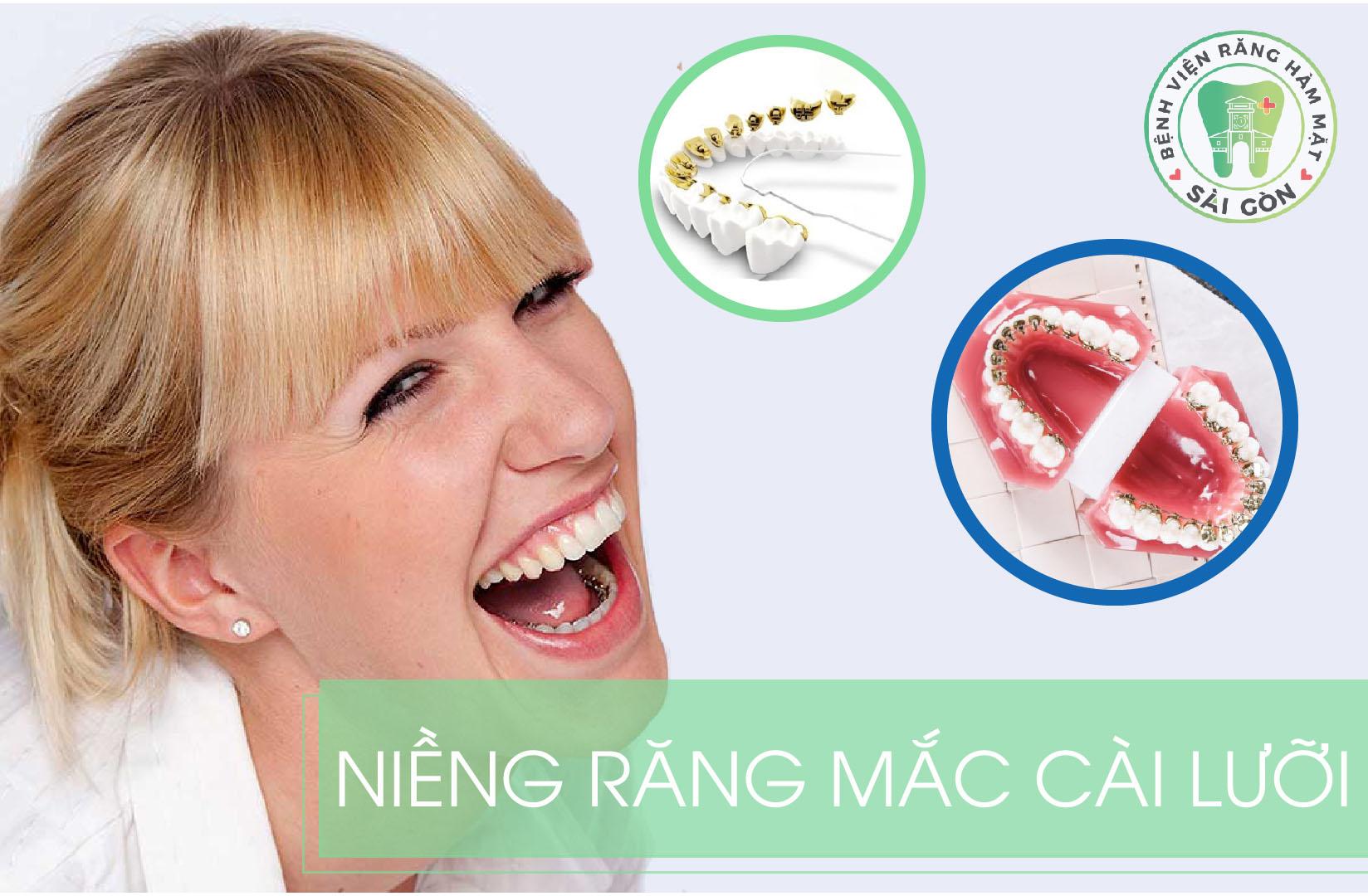 nieng-rang-mac-cai-mat-luoi