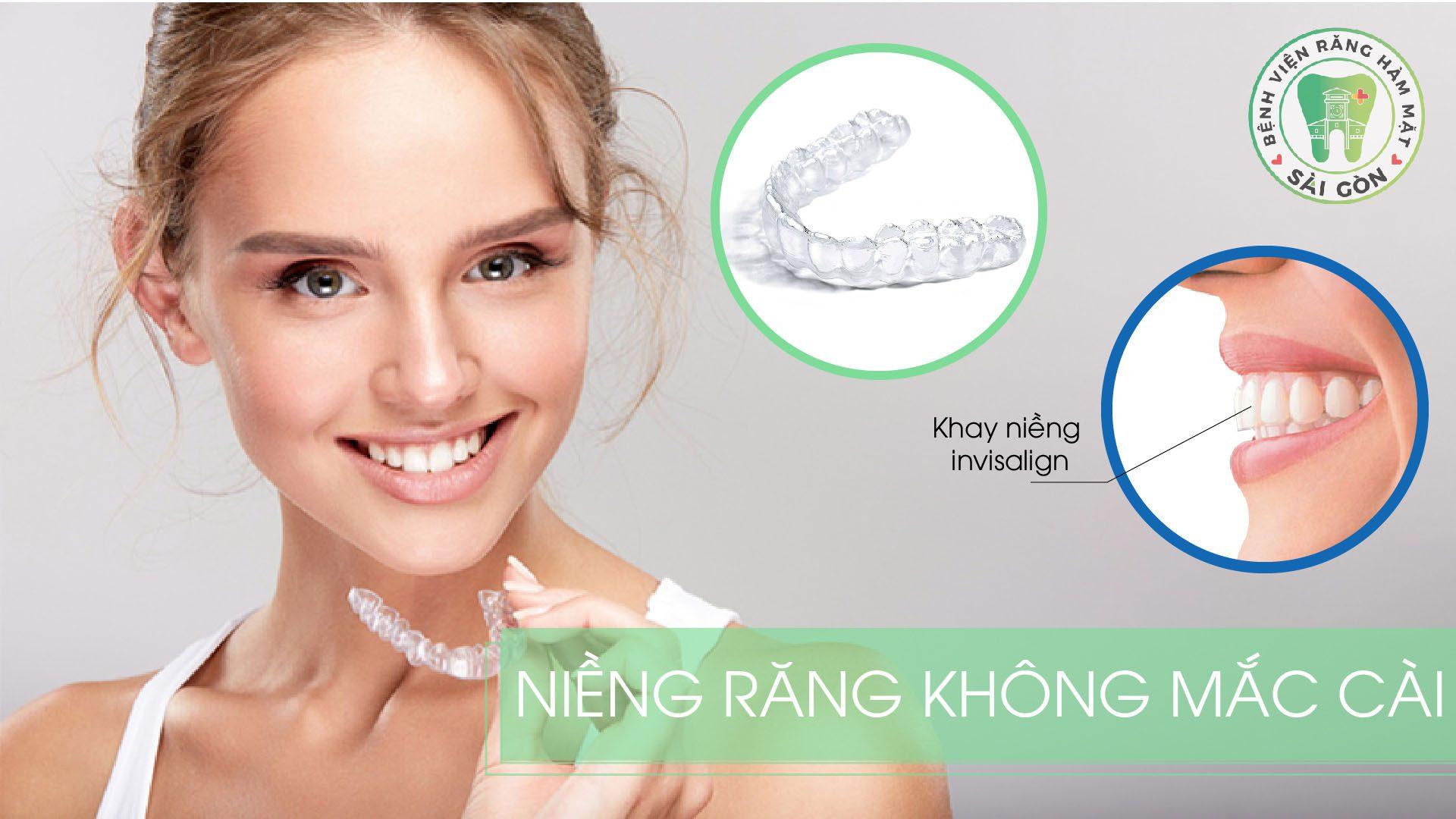 nieng-rang-khong-mac-cai-invisalign