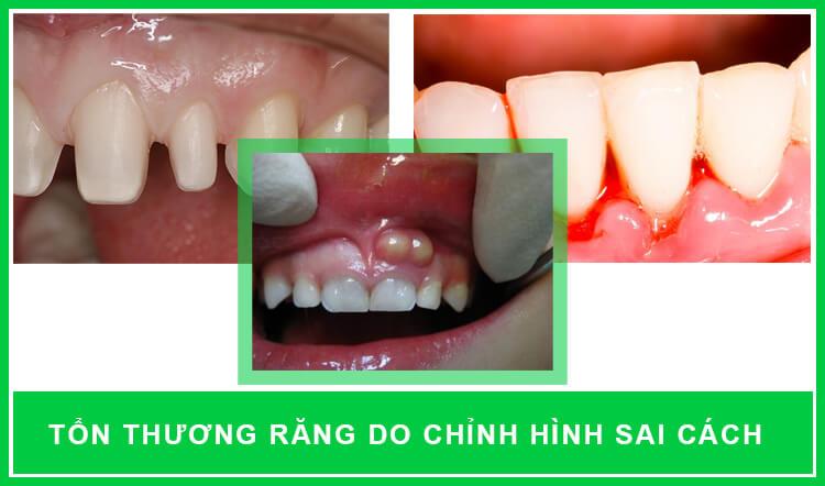 hậu quả chỉnh hình răng sai cách