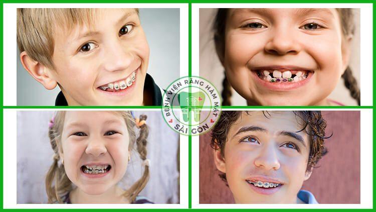 trẻ em niềng răng