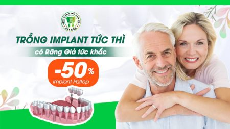 trồng Implant 3d