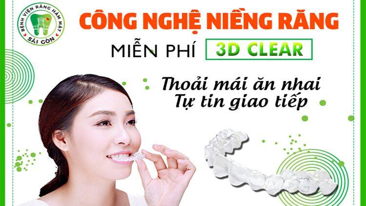 3D clear không mắc cài