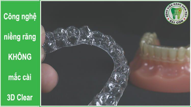 niềng răng 3D Clear