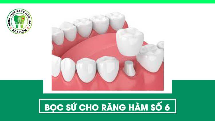 bọc sứ răng số 6