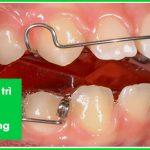 hàm duy trì sau niềng răng