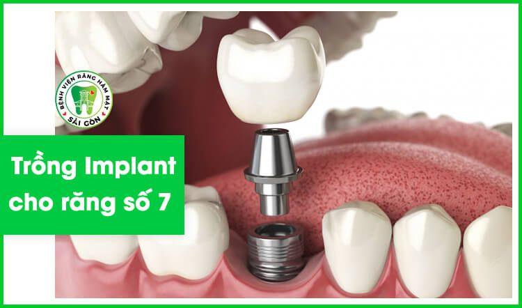 Implant răng số 7