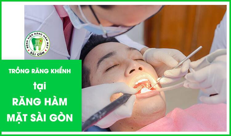 trồng răng khểnh tại nha khoa uy tín