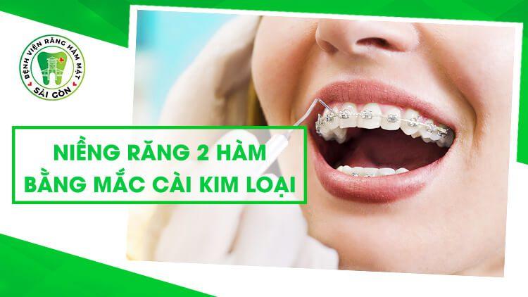niềng răng 2 hàm giá bao nhiêu tiền