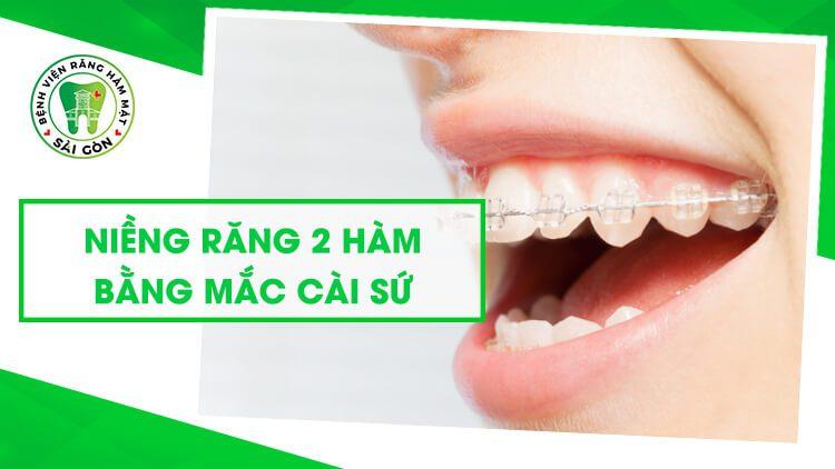 niềng răng 2 hàm