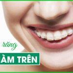 niềng răng hô hàm trên
