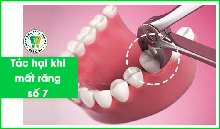trồng răng hàm số 7 bao nhiêu tiền