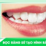 răng thỏ