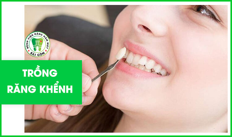 trồng răng khểnh