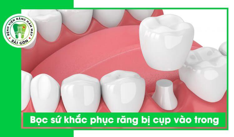 bọc sứ răng cụp