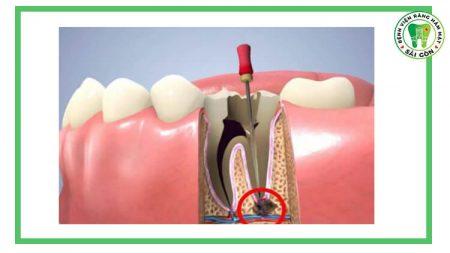 chữa tủy răng nên ăn gì