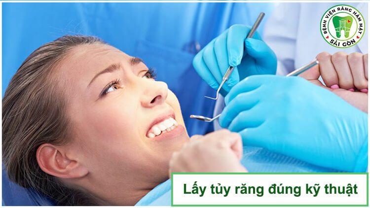 lấy tủy răng đúng kỹ thuật