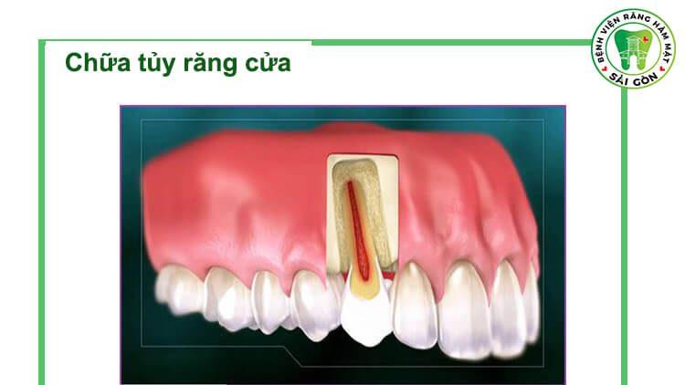 chữa tủy răng cửa