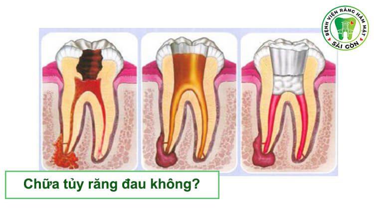 chưa tủy răng đau không
