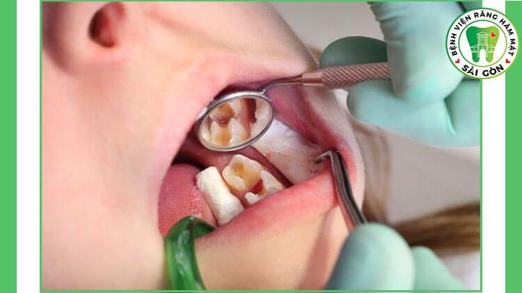 điều trị tủy răng hàm