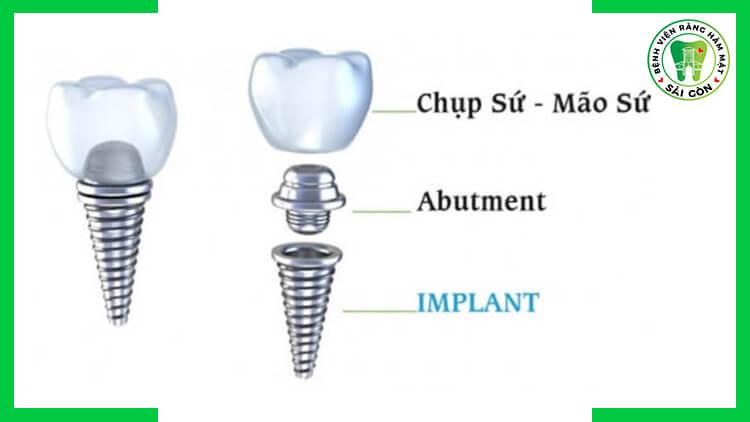 Implant công nghệ châu Âu