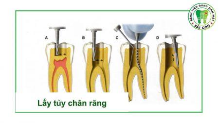 điều trị tủy răng ở đâu tốt