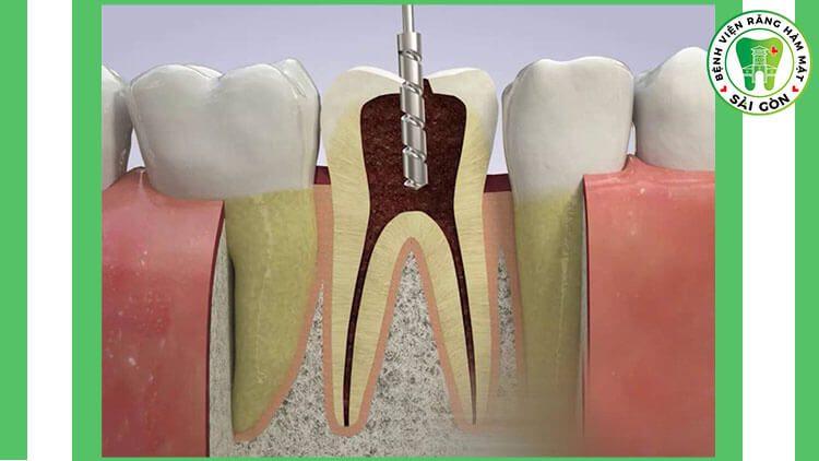 chữa tủy răng hàm
